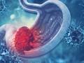Làm thế nào để phát hiện sớm ung thư đường tiêu hóa