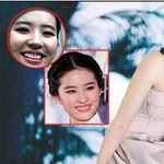 Khuyết điểm khiến sao Hoa Ngữ muốn che giấu: Dương Mịch trán hói, Lưu Diệc Phi cười hở lợi!