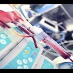 Thiếu máu điều trị khi dịch cúm xảy ra