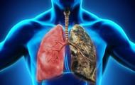 """Cả hai vợ chồng đều mắc ung thư phổi, bác sĩ """"tức giận"""" khi biết lý do"""