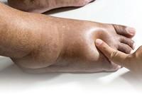 Bàn chân có 5 dấu hiệu này đi khám gan ngay kẻo hối hận