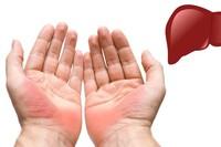 Thấy bàn tay có dấu hiệu này cẩn thận bị gan nhiễm mỡ mà không biết