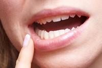 8 dấu hiệu đang tố bạn mắc ung thư miệng