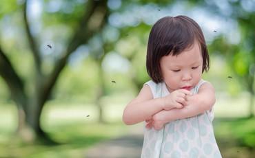 Mùa hè đến, bé liên tục bị muỗi đốt, mẹ phải làm sao?