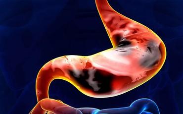 Dấu hiệu ung thư dạ dày giai đoạn sớm